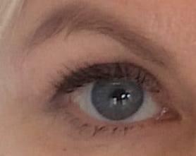 oko po zabiegu plastyki powiek w gabinecie medycyny estetycznej Derm-Estetyka