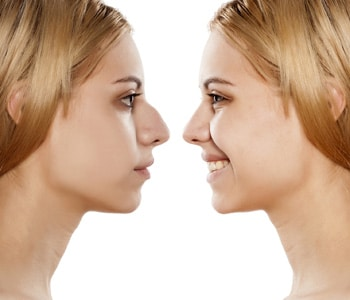Operacja plastyczna nosa - KOREKTA NOSA-OPERACJA NOSA-KRZYWY NOS