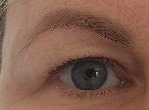 oko z opadającą powieką przed operacją korekty powiek górnych w gabinecie medycyny estetycznej w Gdyni