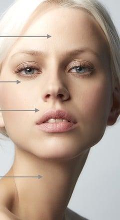 Mezoterapia — kopia — kopia - Mezoterapia skóry twarzy, szyi, dekoltu