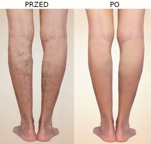 efekty przed i po skleroterapii 2 - Skleroterapia - Leczenie żylaków nóg