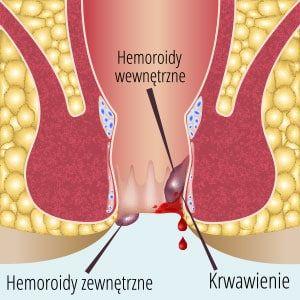 Grafika przedstawiająca hemoroidy wewnętrzne i hemoroidy zewnętrzne