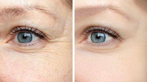 wygladzanie zmarszczek botoksem wokol oczu - BOTOKS - USUWANIE ZMARSZCZEK POD OCZAMI, CZOŁA, MIĘDZY BRWIAMI
