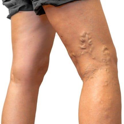 zylaki nog przed skleroterapia - Skleroterapia - Leczenie żylaków nóg