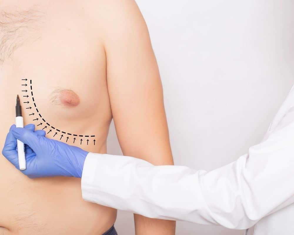 ginekomastia derm estetyka - Ginekomastia - objawy, leczenie, zabieg