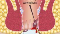 hemoroidy oxoca69pwa6bad5m4km0k8kwvabamy8g3nyojdgvne - Strona główna